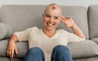 alopecie-pelade-ou-calvitie-precoce